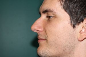 Rhinoplasty case - Preoperative