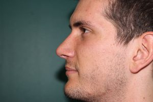 Rhinoplasty case - Post-operative